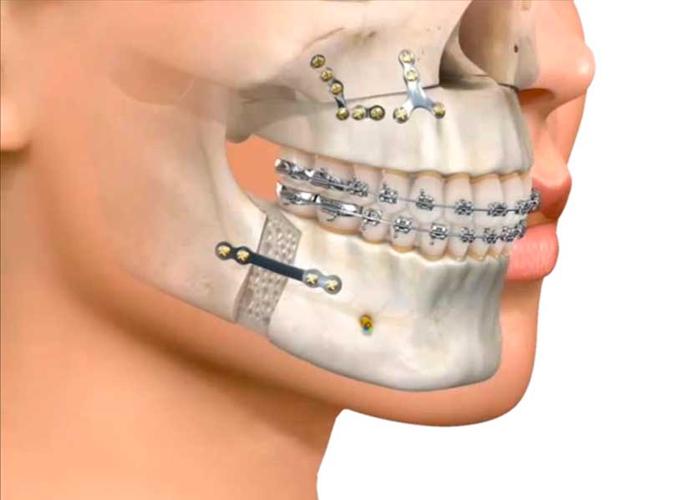 cirugia maxilofacial, orthofami, ortofami, odontologia, odontologia cali, ortodoncia, ortodoncia cali, brackets, brackets cali, odontologo, odontologo cali, servicio odontologico, servicio odontologico cali, profilaxis, limpieza, limpieza dental, dientes, dientes cali, caries, valoracion gratis, valoracion gratis cali, ortodoncia niños, odontologia pediatrica, encias, encia, brackets adolescentes, brackes adultos, ortodoncia adultos, ortodoncia niños, higiene oral, ortodoncia lingual, ortopedia, retenedores, ortopedia cali, ortodoncia lingual cali, retenedores cali, clinica odontologica, clinica odontologica cali,