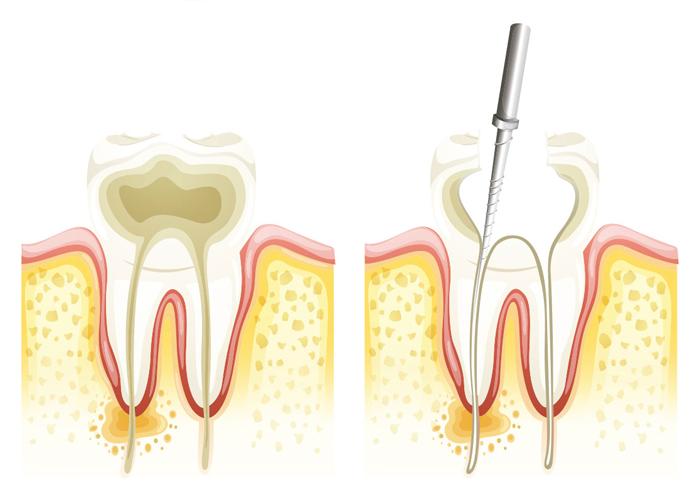 endodoncia, orthofami, ortofami, odontologia, odontologia cali, ortodoncia, ortodoncia cali, brackets, brackets cali, odontologo, odontologo cali, servicio odontologico, servicio odontologico cali, profilaxis, limpieza, limpieza dental, dientes, dientes cali, caries, valoracion gratis, valoracion gratis cali, ortodoncia niños, odontologia pediatrica, encias, encia, brackets adolescentes, brackes adultos, ortodoncia adultos, ortodoncia niños, higiene oral, ortodoncia lingual, ortopedia, retenedores, ortopedia cali, ortodoncia lingual cali, retenedores cali, clinica odontologica, clinica odontologica cali,
